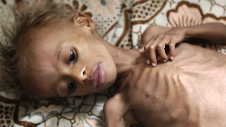 Siyahi çocukların ölme riski beyazlardan 3,5 kat daha fazla