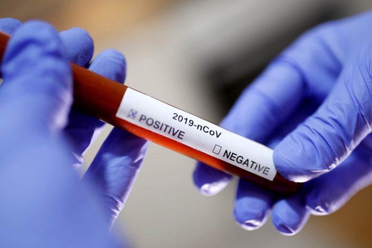 Sağlık Bakanlığı'ndan koronavirüs test ücretine müdahale